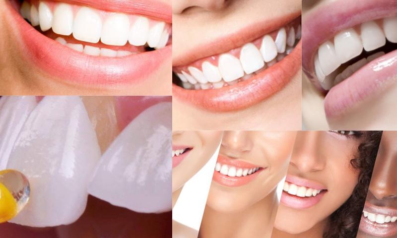 Lamina, Ön Dişlere Estetik Dolgu